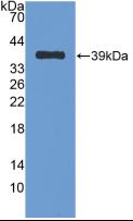 Active Nesfatin 1 (NES1)