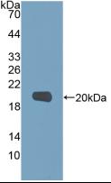 Active Matrix Metalloproteinase 9 (MMP9)