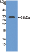 Active Chitinase-3-like Protein 1 (CHI3L1)