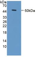 Active Tumor Necrosis Factor Receptor Superfamily, Member 1A (TNFRSF1A)