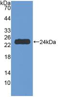 Active Tumor Necrosis Factor Receptor 1 (TNFR1)