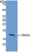Active Fatty Acid Binding Protein 4 (FABP4)