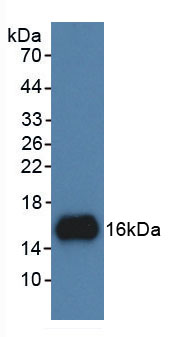 Active UDP Glucose Ceramide Glucosyltransferase (UGCG)
