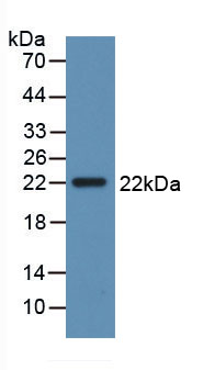 Active Interleukin 28B (IL28B)