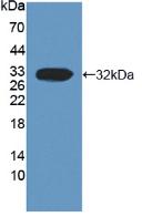 Active Calpain 3 (CAPN3)