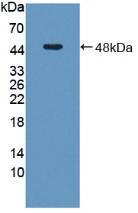 Active Adenosylhomocysteinase (AHCY)