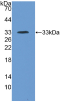 Active Inter Alpha-Globulin Inhibitor H4 (ITIH4)