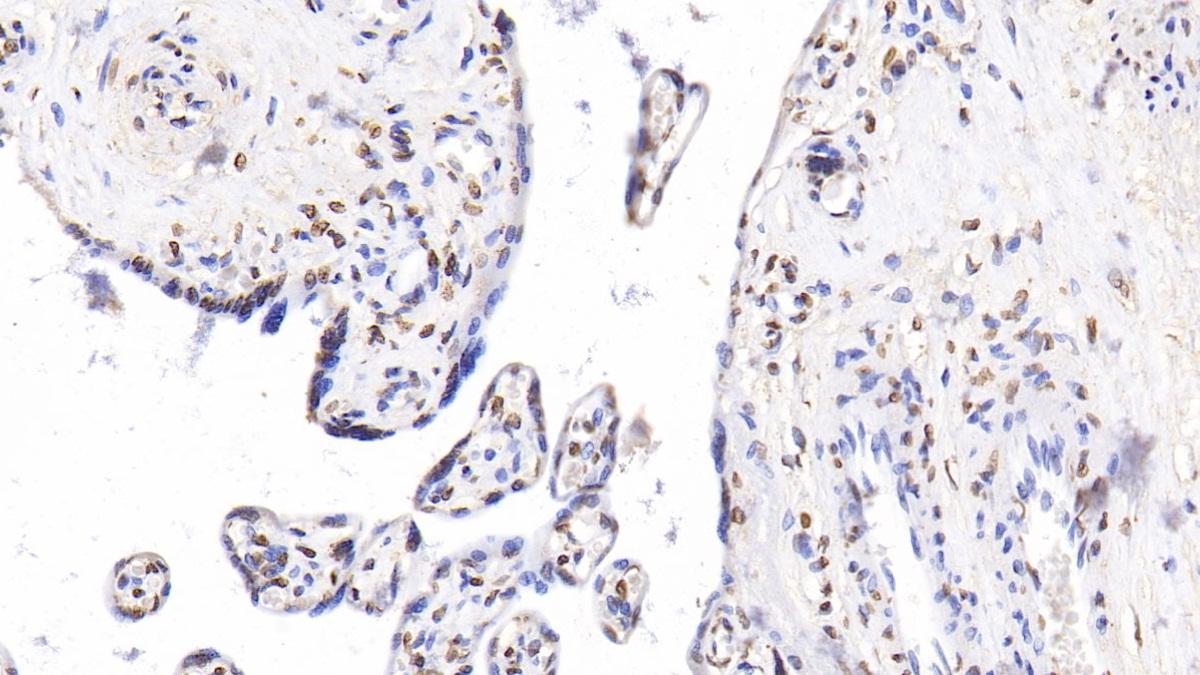 Anti-Histone H3 (H3) Polyclonal Antibody
