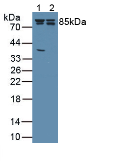 Anti-Catenin Beta 1 (CTNNb1) Monoclonal Antibody