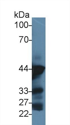 Anti-Actin Alpha 1, Cardiac Muscle (ACTC1) Monoclonal Antibody