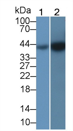 Anti-Actin Alpha 2, Smooth Muscle (ACTa2) Monoclonal Antibody