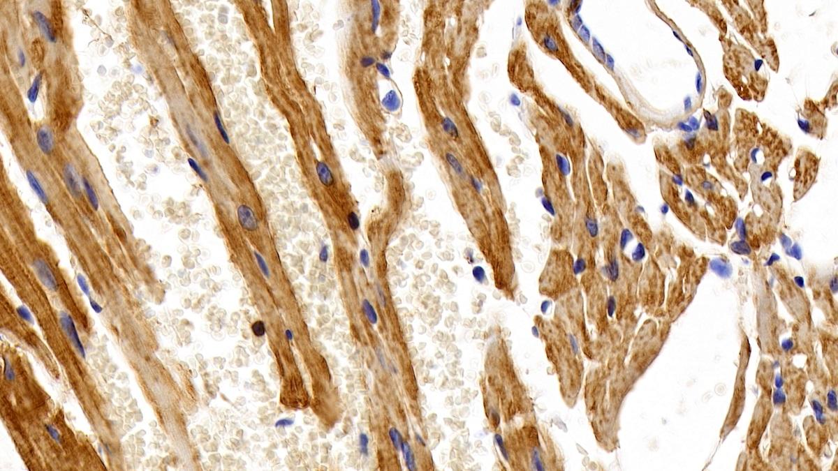 Anti-Actin Alpha 2, Smooth Muscle (ACTa2) Monoclonal Antibody