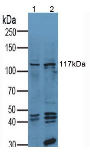 Anti-Vinculin (VCL) Polyclonal Antibody
