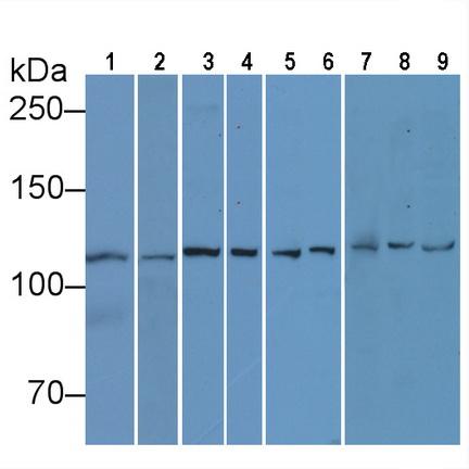 Anti-Vinculin (VCL) Monoclonal Antibody