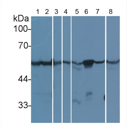 Anti-Tubulin Beta (TUBb) Monoclonal Antibody