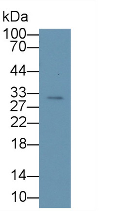 Anti-Voltage Dependent Anion Channel Protein 1 (VDAC1) Polyclonal Antibody