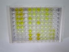 ELISA Kit for Follicle Stimulating Hormone (FSH)
