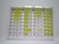 ELISA Kit for Gastrin (GT)