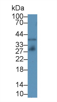 Monoclonal Antibody to Insulin Like Growth Factor Binding Protein 4 (IGFBP4)