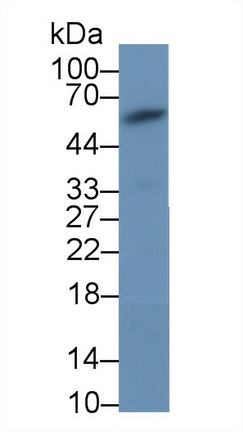 Monoclonal Antibody to Anti-Mullerian Hormone (AMH)