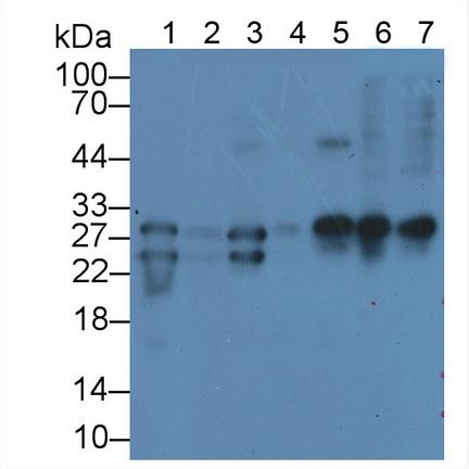 Monoclonal Antibody to Cardiac Troponin I (cTnI)