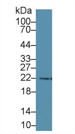 Monoclonal Antibody to N-Terminal Pro-Brain Natriuretic Peptide (NT-ProBNP)