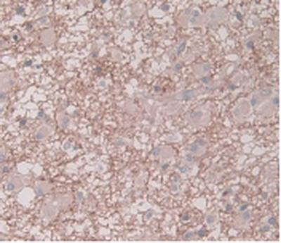 Monoclonal Antibody to Plasminogen Activator Inhibitor 1 (PAI1)