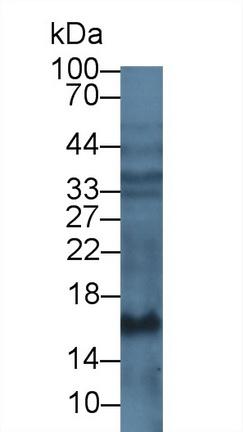 Monoclonal Antibody to Procollagen III N-Terminal Propeptide (PIIINP)