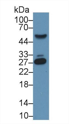 Monoclonal Antibody to C Reactive Protein (CRP)