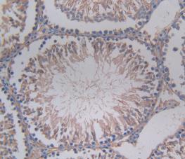 Monoclonal Antibody to Corticosteroid Binding Globulin (CBG)