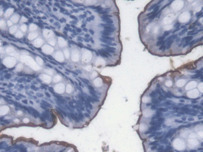 Monoclonal Antibody to Lipopolysaccharide (LPS)