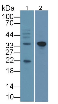 Monoclonal Antibody to Glyceraldehyde-3-Phosphate Dehydrogenase (GAPDH)