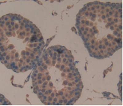 Monoclonal Antibody to Alpha-1-B-Glycoprotein (a1BG)