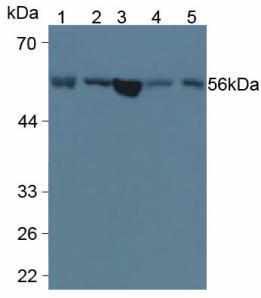Monoclonal Antibody to Lysophosphatidylcholine Acyltransferase 3 (LPCAT3)