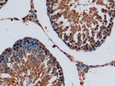 Monoclonal Antibody to Fibroblast Growth Factor 15 (FGF15)
