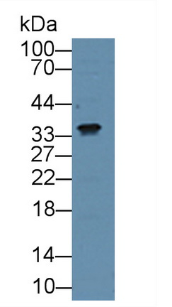 Polyclonal Antibody to Connective Tissue Growth Factor (CTGF)