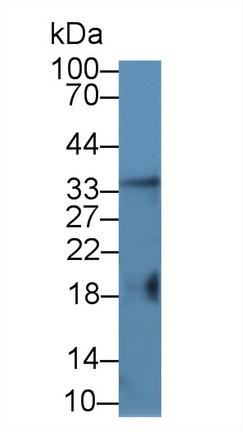 Polyclonal Antibody to Factor Related Apoptosis Ligand (FASL)