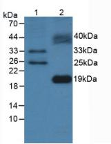 Polyclonal Antibody to FMS Like Tyrosine Kinase 3 Ligand (Flt3L)