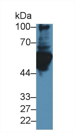 Polyclonal Antibody to Glial Fibrillary Acidic Protein (GFAP)