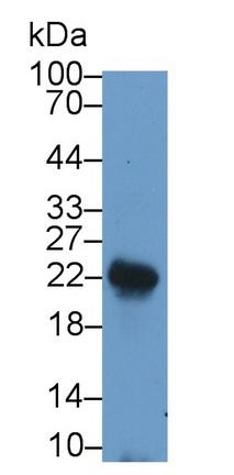Polyclonal Antibody to Leukemia Inhibitory Factor (LIF)