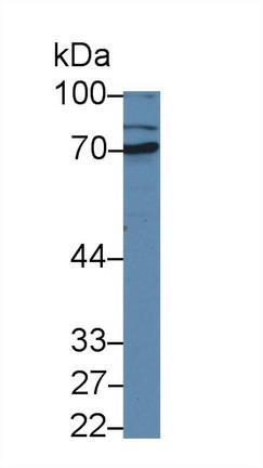 Polyclonal Antibody to Matrix Metalloproteinase 1 (MMP1)