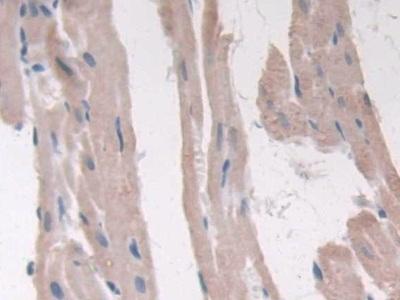 Polyclonal Antibody to Adiponectin Receptor 2 (ADIPOR2)