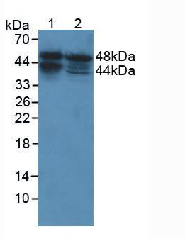 Polyclonal Antibody to Acid Phosphatase 3, Prostatic (ACP3)