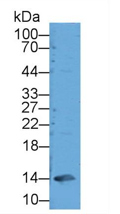 Polyclonal Antibody to Glycated Hemoglobin A1c (HbA1c)