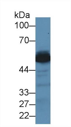 Polyclonal Antibody to Alanine Aminotransferase (ALT)