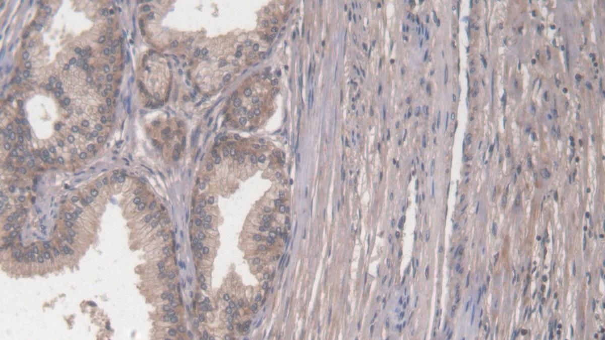Polyclonal Antibody to Collagen Type I Alpha 2 (COL1a2)