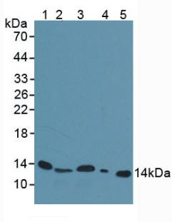 Polyclonal Antibody to Beta-2-Microglobulin (b2M)