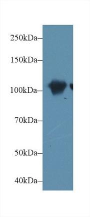 Polyclonal Antibody to Actinin Alpha 2 (ACTN2)