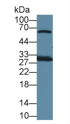 Polyclonal Antibody to High Mobility Group Protein 1 (HMGB1)
