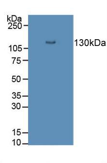 Polyclonal Antibody to Desmoglein 3 (DSG3)